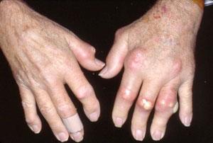 354020_SEvere_gouty_arthritis
