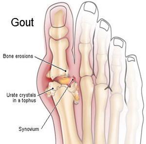 gout 5