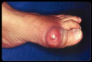 gout_big_toe_s5