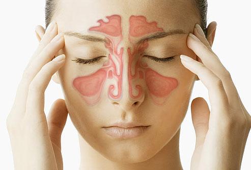 தொடர் மூக்கு அழற்சி  ( Chronic Simple Rhinitis )