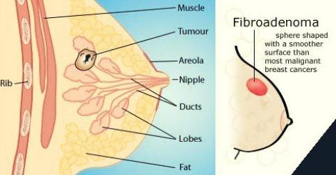 மருத்துவக் கட்டுரை-      மார்பக  தசைநார்க் கட்டி   ( பைப்ரோஅடினோமா )    ( Fibroadenoma )