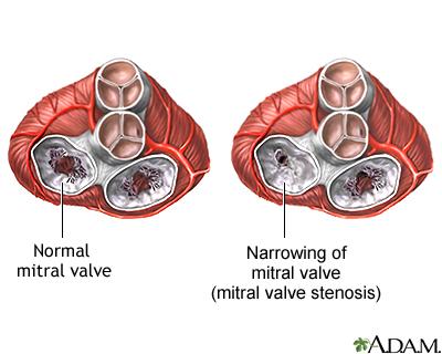 Mitral Stenosis(1)