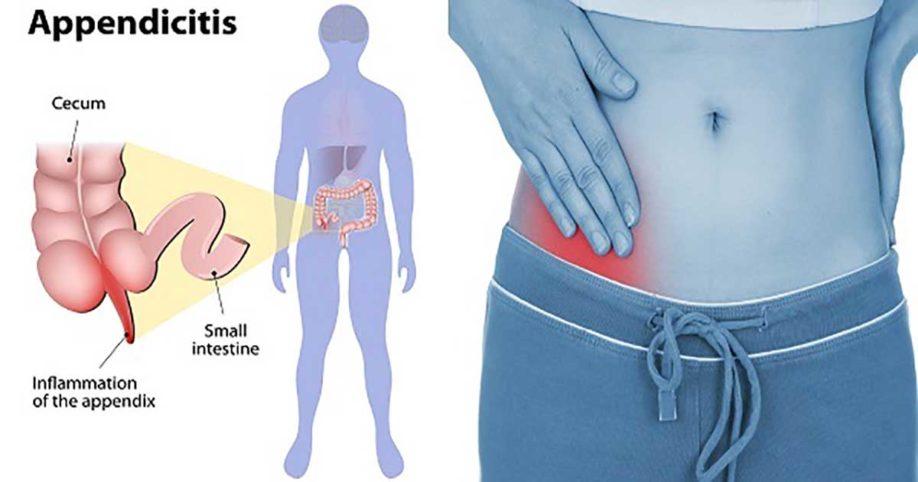 குடல் வால் அழற்சி ( Appendicitis )